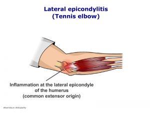 armp01-lateral-epicondylitis