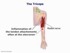 armp04-triceps-tendinitis