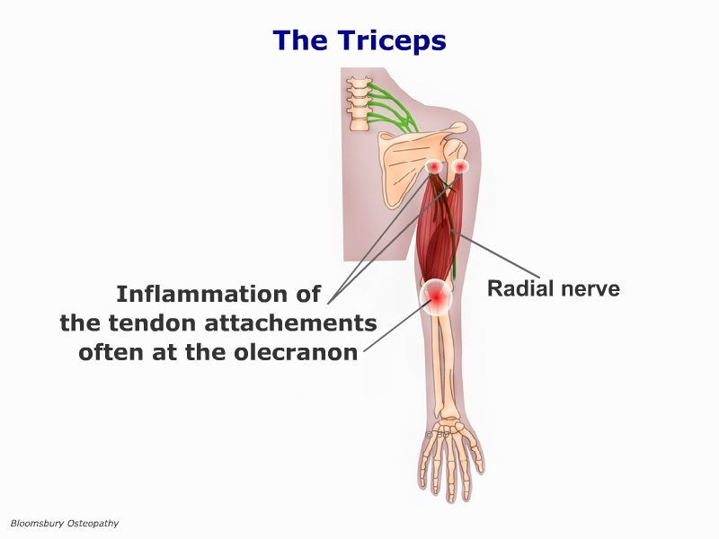 Triceps Tendinitis ARMP04