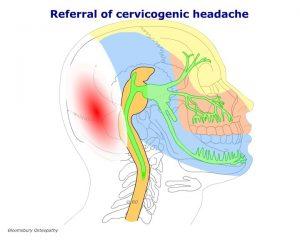 cspp05-cervicogenic-headache