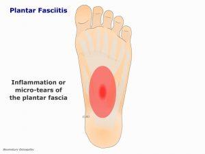 fotp03-plantar-fasciitis