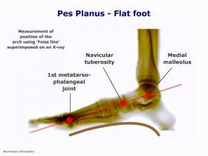 fotp04-flat-foot-pes-planus