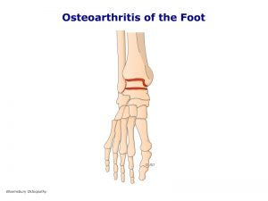fotp06-osteoarthritis-of-the-ankle-and-foot