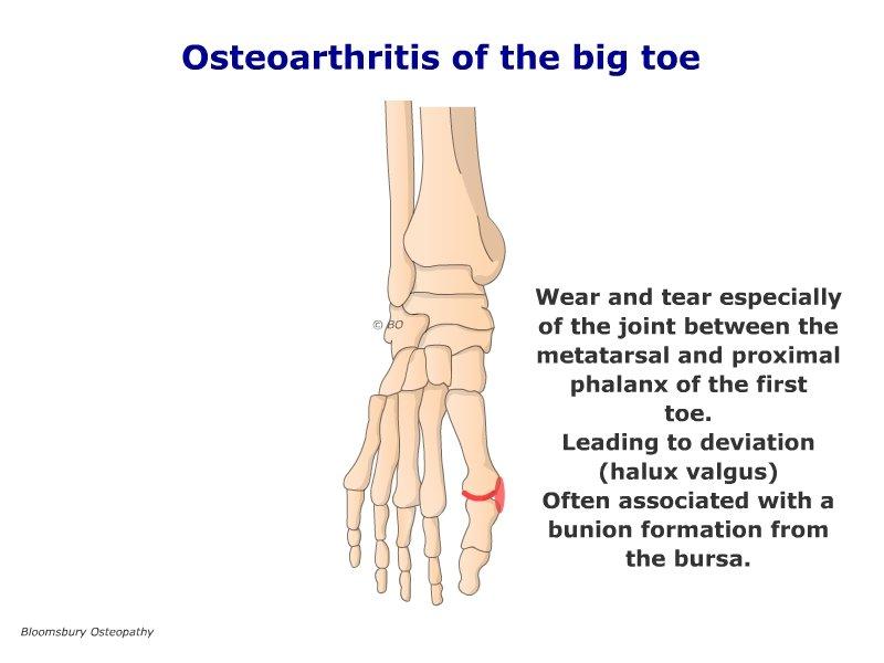 metatarsal osteoarthritis fájó hüvelykujj az ízületben