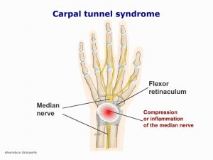 hanp01-carpal-tunnel-syndrome