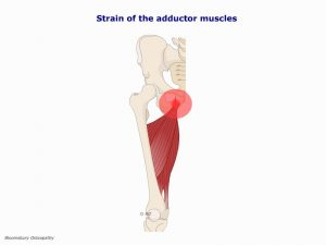 hipp06-strain-of-the-adductors-muscles