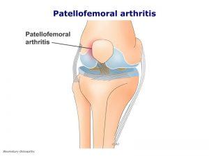 legp02-patellofemoral-arthritis