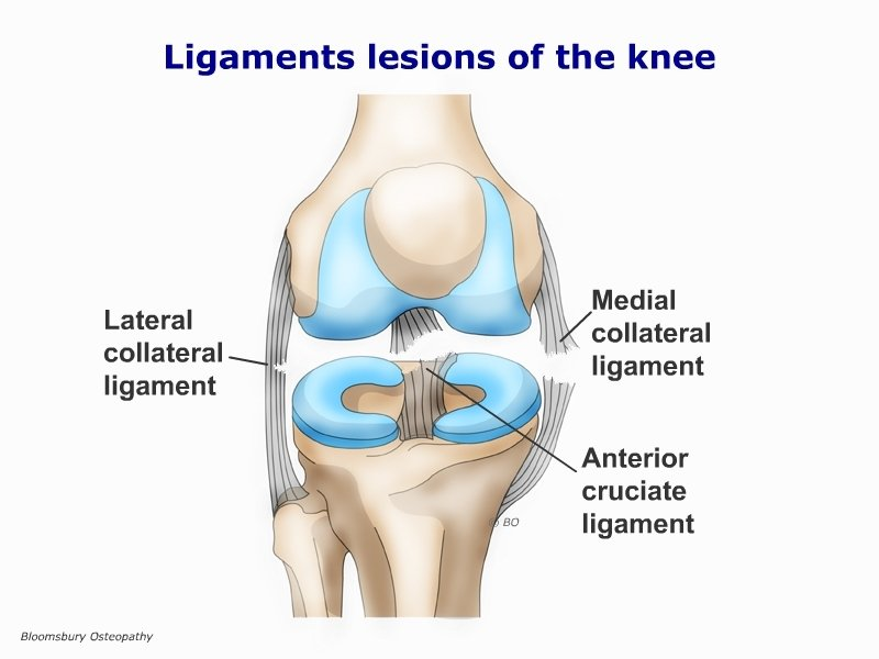 Ligament Lesions Of The Knee Legp03
