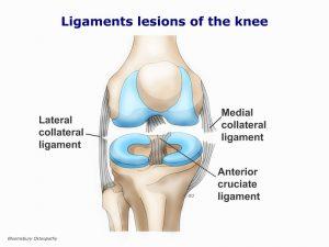 legp05-cruciate-ligament-lesions