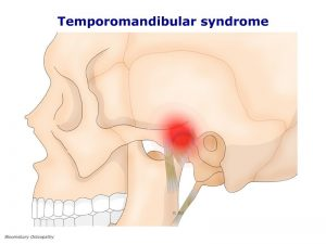 tmjp01-tmj-syndrome