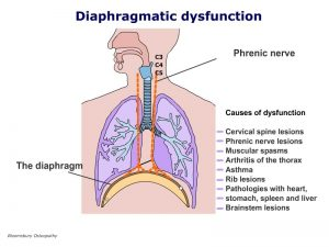 tspp01-diaphragmatic-dysfunction