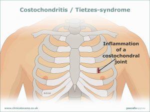 tspp03-costochondritis