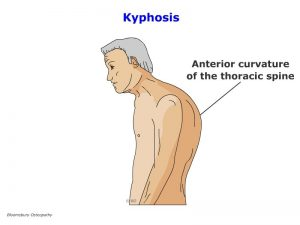 tspp05-thoracic-kyphosis